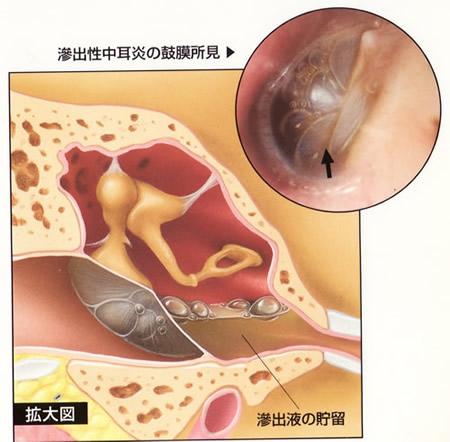 滲出性中耳炎の鼓膜所見